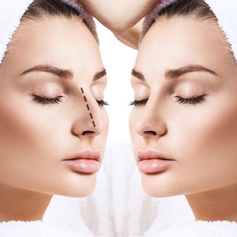 cirugia de nariz bogota colombia
